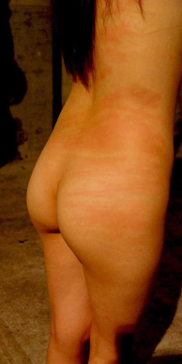 【SMエロ画像】(※閲覧注意)生活に支障が出そう…ハード折檻で傷だらけなM女の尻www 05