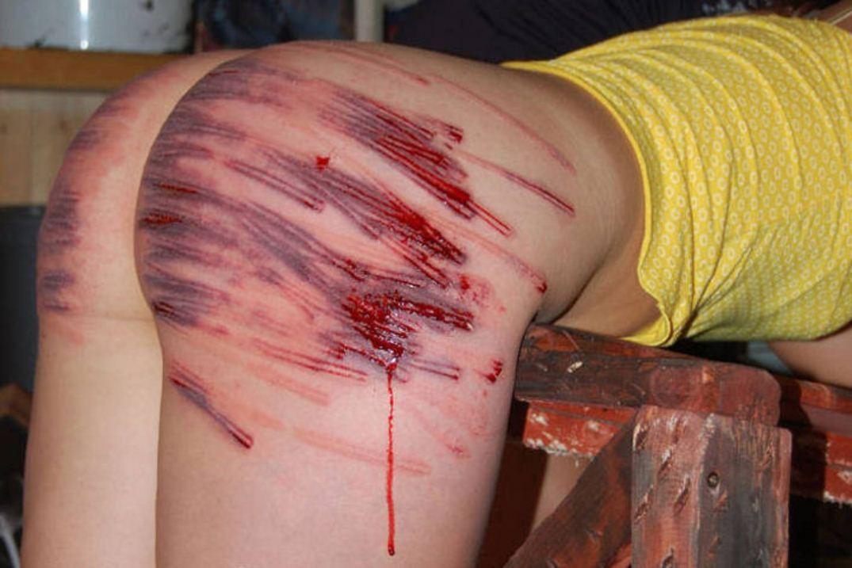 【SMエロ画像】(※閲覧注意)生活に支障が出そう…ハード折檻で傷だらけなM女の尻www 07