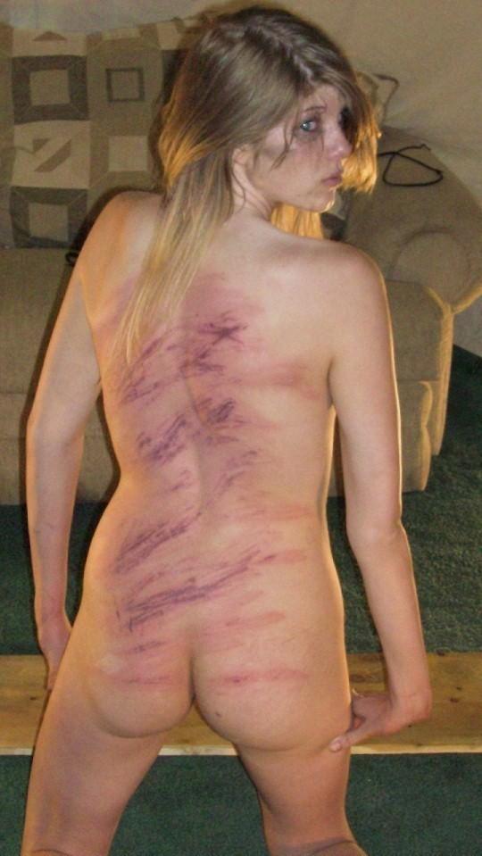 【SMエロ画像】(※閲覧注意)生活に支障が出そう…ハード折檻で傷だらけなM女の尻www 10