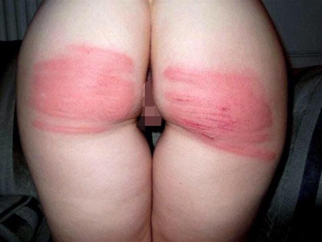 【SMエロ画像】(GIF有)危険な快感に目覚めた結果の…叩かれ過ぎて真っ赤になったM女の尻www 02